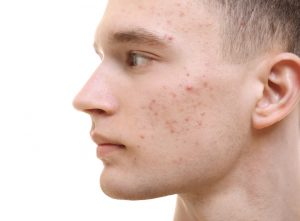 Male with acne