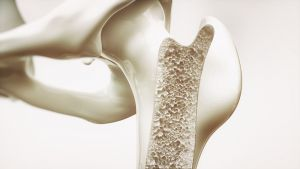 osteoporosis cross section of bone