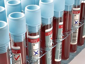 HIV blood test